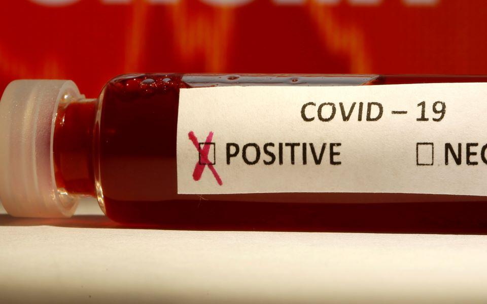 covidtest