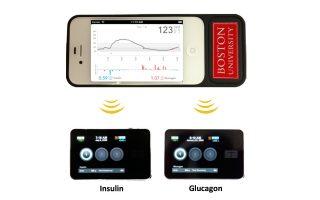 Το βιονικό πάγκρεας διαθέτει «έξυπνο»κινητό τηλέφωνο, συνδεδεμένο μετρητή επιπέδων σακχάρου στο αίμα και δύο αντλίες.