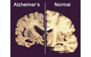 Κατεστραμμένος εγκέφαλος από τη νόσο Aλτσχάιμερ.