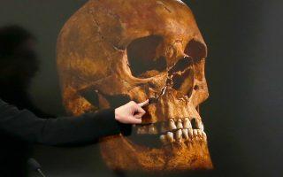Πολλαπλά τραύματα στο κεφάλι και στο πρόσωπο, όπως φαίνεται και από τη φωτογραφία, έφερε το κρανίο του βασιλιά Ριχάρδου Γ΄, ο σκελετός του οποίου βρέθηκε το 2012 στο Λέστερ της Αγγλίας. Δύο από αυτά θα μπορούσαν να έχουν επιφέρει τον θάνατο του πολεμιστή, ο οποίος άφησε την τελευταία του πνοή στην εμφύλια Μάχη του Μπόσγουορθ στις 22 Αυγούστου 1485.