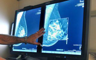 Αν τα κύτταρα του όγκου έχουν μεταναστεύσει σε κάποιο άλλο σημείο του σώματος ή αν ο χειρουργός δεν τον αφαίρεσε όλο, ο καρκίνος θα επιστρέψει.