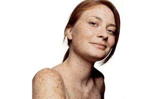 Δέρματα με ελιές ή φακίδες χρήζουν ιδιαίτερης προσοχής.