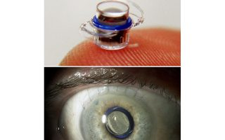 «Βιονικό μάτι» θα αποκτήσουν Βρετανοί ασθενείς που πάσχουν από κληρονομική μορφή τύφλωσης.