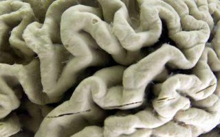 Το Παγκόσμιο Εργαστήριο Εγκεφάλου αποτελείται από 21 εργαστήρια στις Ηνωμένες Πολιτείες και στην Ευρώπη.