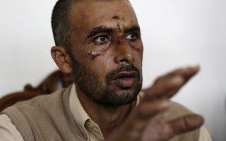Το θύμα Ασφάκ Μαχμούντ, με πρησμένο πρόσωπο και ράμματα από την επίθεση που δέχτηκε πρόσφατα στο χωράφι όπου εργάζεται.