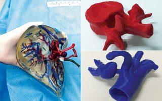 Η τρισδιάστατη εκτύπωση οργάνων βοηθάει στην προετοιμασία των χειρουργών πριν από την επέμβαση.