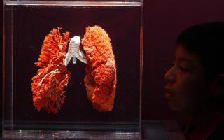 Φωτογραφία από τη διεθνή έκθεση «Bodies: The Exhibition» του Gunther Von Hagens στη Λίμα, Περού (REUTERS/PILAR OLIVARES/FILES).