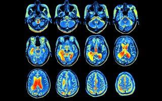 Μία από τις έρευνες βασίστηκε σε απεικονιστικές εξετάσεις εγκεφάλων.