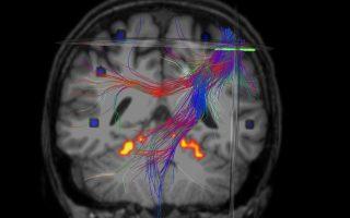 Tο ιατρικό λογισμικό της εταιρείας, Brainance MD, έχει ως κύριο αντικείμενο την απεικόνιση και μετεπεξεργασία μαγνητικών τομογραφιών του εγκεφάλου.