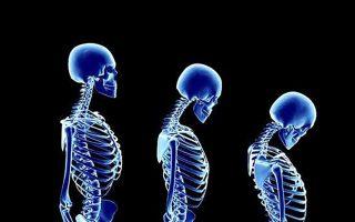 20-oktovrioy-pagkosmia-imera-osteoporosis-simera-yparchei-lysi0