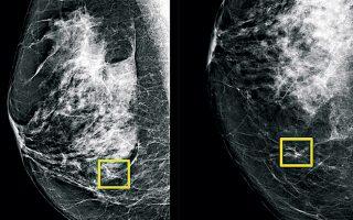Στο κίτρινο πλαίσιο εικονίζεται ο καρκίνος του μαστού που εντόπισε η τεχνητή νοημοσύνη. Εξι ακτινοδιαγνώστες δεν τα είχαν καταφέρει.