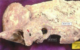 endeixeis-polyplokis-cheiroyrgikis-epemvasis-se-kranio-protovyzantinis-periodoy0