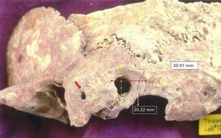 endeixeis-polyplokis-cheiroyrgikis-epemvasis-se-kranio-protovyzantinis-periodoy-2372573