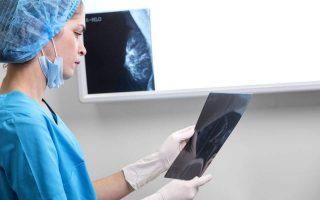 H ετήσια μαστογραφία μπορεί να σώσει τη ζωή χιλιάδων γυναικών από τον καρκίνο του μαστού.