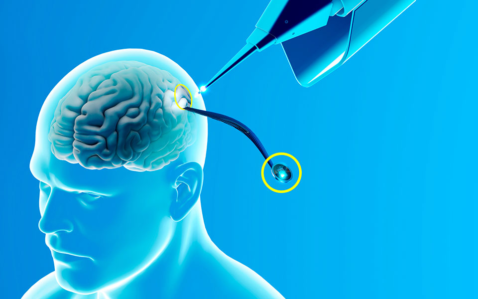 H ιδέα της σύνδεσης εγκεφάλου - μηχανής δεν είναι νέα. Επί δεκαετίες αποτελεί έναν από τους πιο φιλόδοξους στόχους της επιστημονικής έρευνας. Παρόμοια συστήματα έχουν εμφυτευθεί στον εγκέφαλο όχι μόνο πειραματόζωων, αλλά και ανθρώπων. (Φωτ. SHUTTERSTOCK)