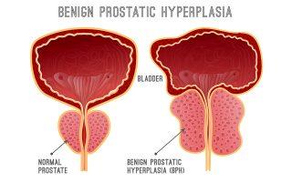 kaloithis-yperplasia-toy-prostati-kyp0