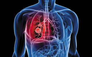 H χρήση της έξυπνης ιατρικής τεχνολογίας αυξάνει τις πιθανότητες αντιμετώπισης της νόσου.